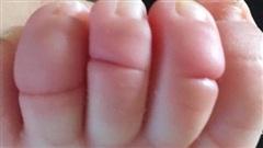 Thấy ngón chân của con đột nhiên bị sưng phồng, bà mẹ đưa con đi khám và sững sờ khi nghe bác sĩ nói nguyên nhân