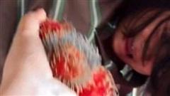 Đoạn clip quay cảnh cô bé oằn mình, kêu khóc ầm ĩ vì sợ một loại quả mà đâu đâu cũng có, thu hút gần cả triệu lượt xem