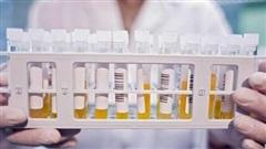 Bộ Y tế: Những người đã khỏi Covid-19 hãy hiến huyết tương