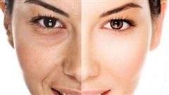 7 bí quyết giúp bạn giảm nếp nhăn trên da mặt