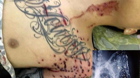 Khởi tố vụ án, khởi tố bị can vụ nổ súng 'hoa cải' tại trạm BOT