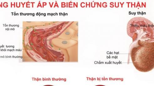Dự phòng tăng huyết áp ở phụ nữ luống tuổi
