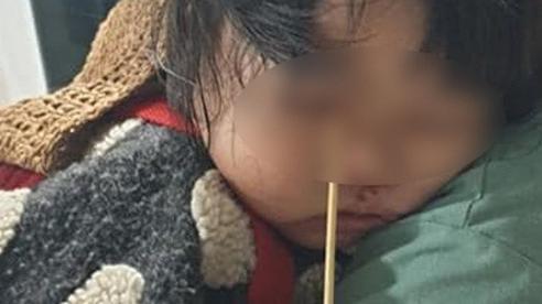 Đang ăn kem thì vấp ngã, bé gái 2 tuổi bị que kem dài 20cm chọc xuyên hốc mắt