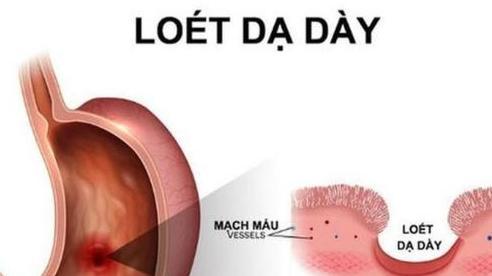 Viêm loét dạ dày do tự ý dùng thuốc giảm đau