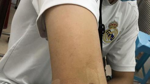 Lần đầu tiên tại ĐBSCL phẫu thuật thành công liệt cánh tay chỉ trong 30 phút