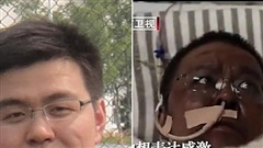 Bác sĩ có làn da chuyển sang màu nâu do nhiễm Covid-19 đã qua đời