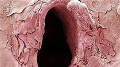 Chùm ảnh kinh dị khi nhìn qua kính hiển vi khiến người gan dạ nhất cũng phải rùng mình sởn gai ốc