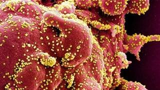 NGUY HIỂM! SARS-CoV-2 chủ đạo hiện nay là biến thể mới, lây lan cực mạnh trong tế bào người