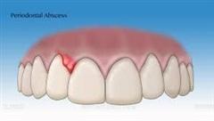 Áp xe nha chu – bệnh lý răng miệng nguy hiểm thường gặp