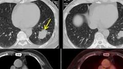 Ung thư phổi di căn, người đàn ông Hà Nội vẫn sống tốt sau 6 năm