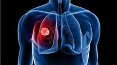 Hơn 20.000 người chết một năm: 5 dấu hiệu ung thư phổi bạn phải nhớ