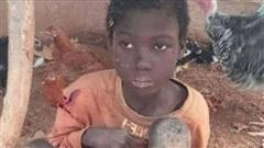 Bị nhốt trong chuồng gà suốt 2 năm, bé trai phải ăn chất thải của mình để sống qua ngày