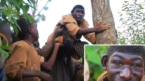 Cuộc sống kỳ lạ của 'Tarzan đời thực': Không có khả năng nhận thức, chỉ biết cắm đầu chạy khắp rừng xanh và bị trêu chọc vì ngoại hình