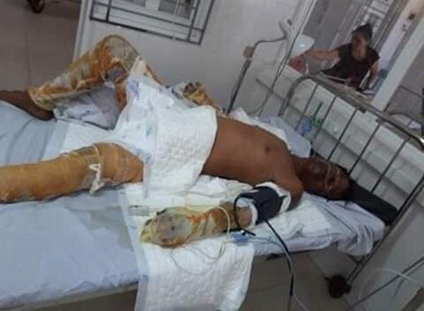 Anh Vinh bị bỏng nặng với thương tích 70%. Ảnh: Báo Pháp luật Việt Nam