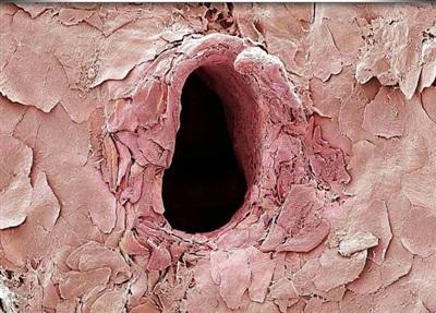 Vết kim tiêm da người khi nhìn qua kính hiển vi. Bình thường tiêm đã đau mà nhìn ảnh còn ghê rợn gấp chục lần!