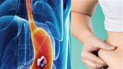Kiểm soát tốt béo phì  để hạn chế gây ung thư