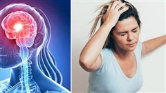 'Tai biến mạch máu não nháp': Dấu hiệu cảnh báo đột quỵ thật, nhiều người bỏ qua vì chủ quan