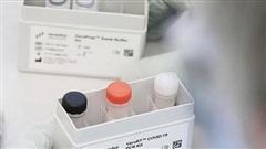 Chuẩn đoán COVID-19 nhanh hơn với bộ xét nghiệm PCR mới tại Singapore