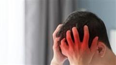 Chứng đau đầu do thay đổi thời tiết