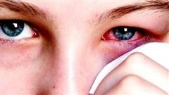 4 sai lầm khi điều trị đau mắt đỏ bạn cần tránh