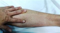 Hà Nội: Ca tử vong thứ 2 vì sốt xuất huyết, sốt 5 ngày, tự mua thuốc điều trị
