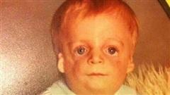 Sinh ra với diện mạo kỳ lạ, bé trai mới 2 ngày tuổi đã bị bố mẹ bỏ rơi và cuộc sống ai cũng phải ngước nhìn 3 thập kỷ sau