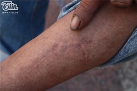 Bên trong lớp da này là phần xương không lành lặn, âm ỉ đau mỗi khi trái gió trở trời