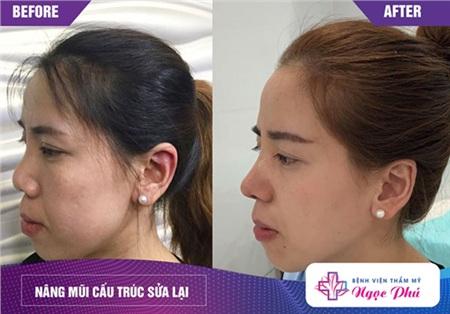 Tái cấu trúc dáng mũi sẽ giúp bạn sở hữu dáng mũi hoàn hảo hơn so với trước đó