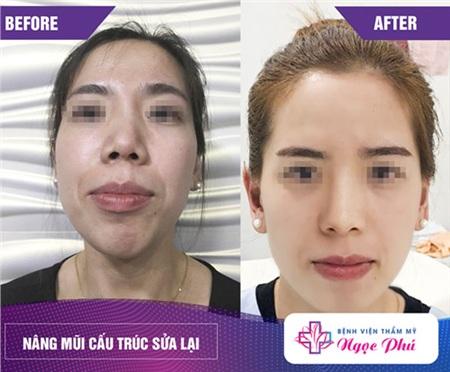Tình trạng mũi lệch sẽ được khắc phục hiệu quả sau khi tái cấu trúc dáng mũi – chỉnh sửa mũi hỏng