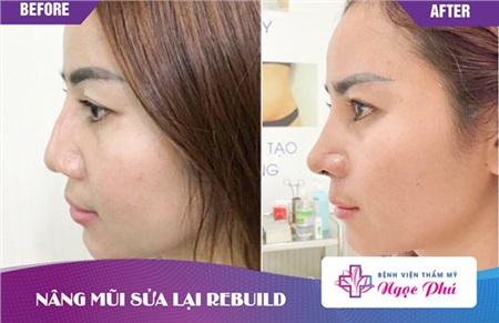 Trường hợp sống mũi co rút, lộ sống cũng sẽ được chỉnh sửa để sở hữu dáng mũi mới hoàn hảo hơn