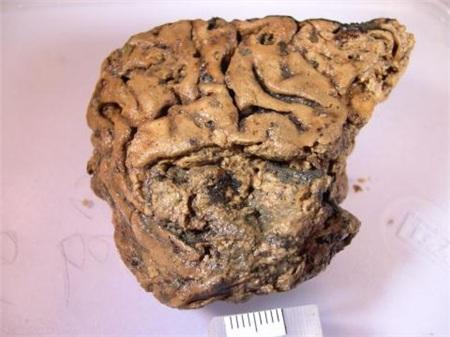 Bộ não được bảo tồn nguyên vẹn đến kinh ngạc sau 2.600 năm