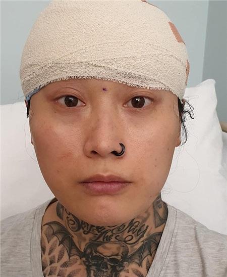 Eva Echo trong quá trình phẫu thuật chuyển giới