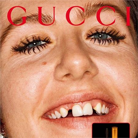 Gucci gây tranh cãi với mẫu răng thưa, ố vàng