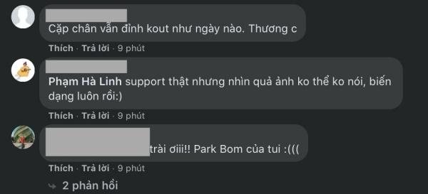 Park Bom gây choáng với gương mặt biến dạng, hiện nọng cằm rõ mồn một 14
