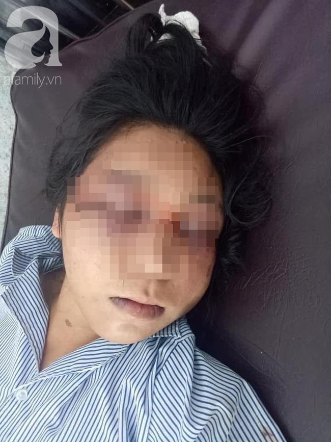 Thai phụ bị chồng đánh nhập viện.