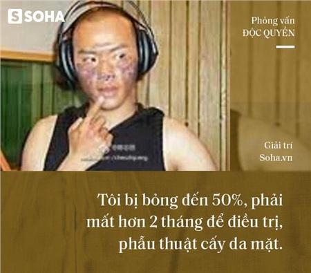 Phỏng vấn 'Nhĩ Thái' phim Hoàn Châu Cách Cách trải lòng về cú sốc khiến mặt bị bỏng 50% 6