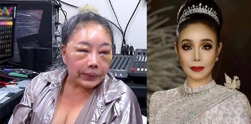 Gương mặt sưng vù của nữ nghệ sĩ bị nghi là do chồng trẻ bạo hành hồi năm 2018.