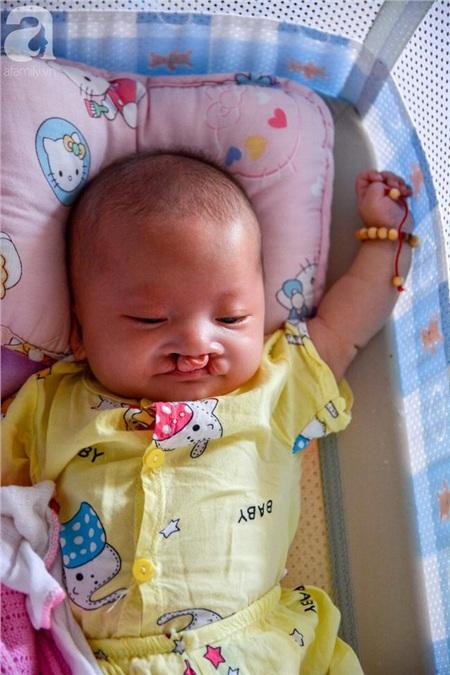 Một em bé bị hở hàm ếch.
