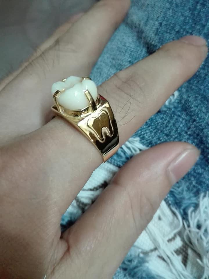 Chiếc nhẫn vàng bọc răng độc nhất vô nhị trên đời, chỉ anh chồng này mới có.