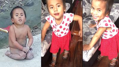 Xúc động nhìn những bước đi đầu tiên của em bé tật nguyền ở Thanh Hóa