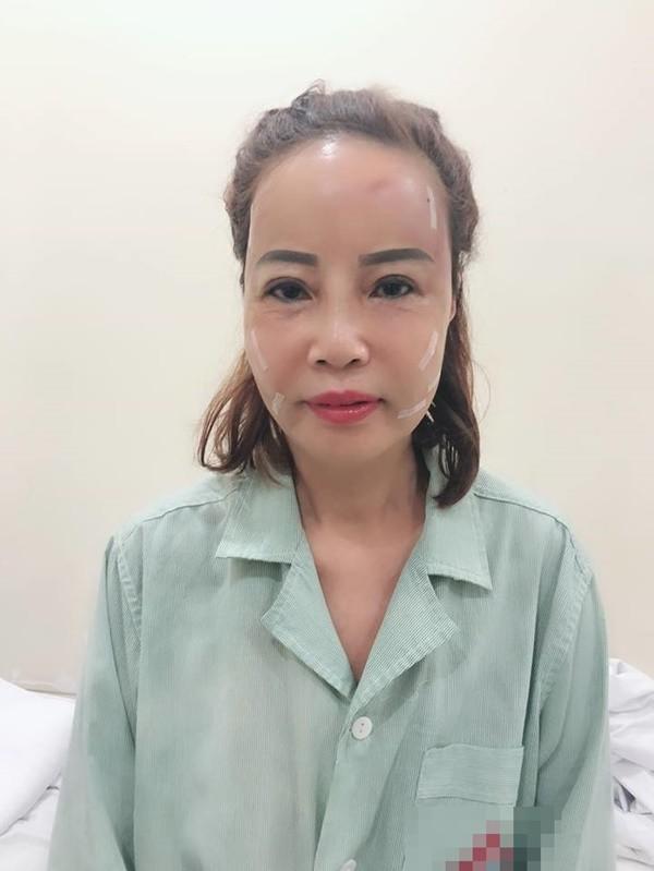 Hình ảnh làn da căng bóng của cô dâu 62 tuổi trước đó bị chỉ trích vì PR quá lố.