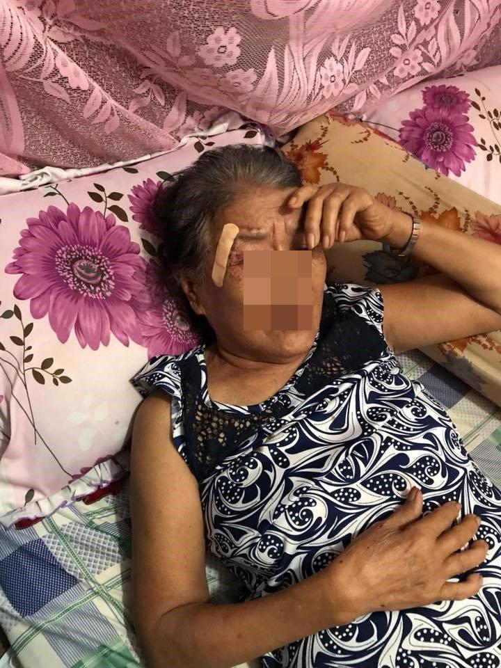 Mẹ của L bị bố đánh đến mức phải nhập viện.