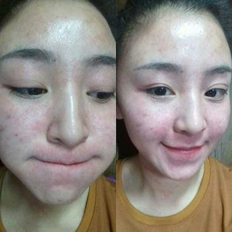 Khuôn mặt Bảo Chichi chít mụn do sử dụng mỹ phẩm kém chất lượng
