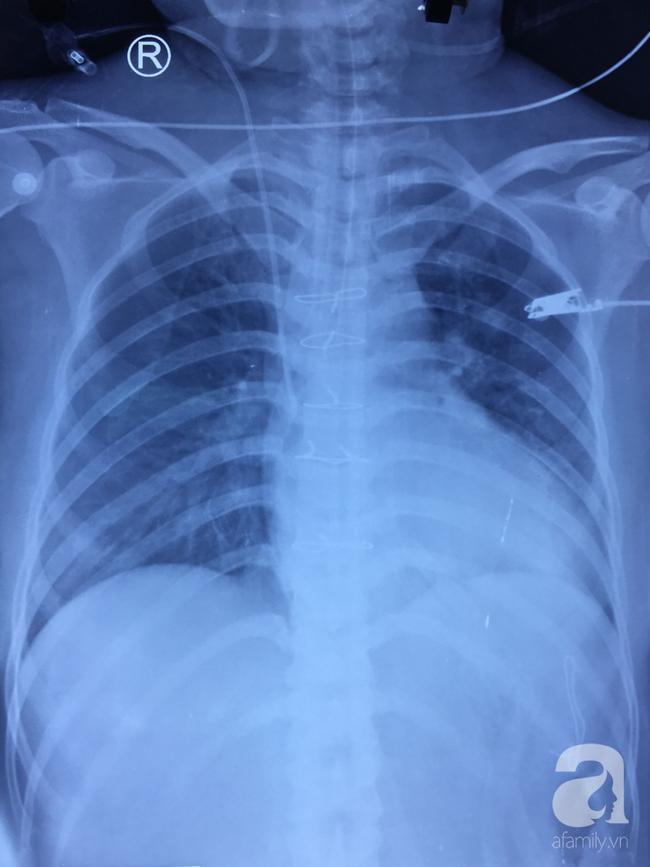 Sau mổ, bệnh nhân thoát chết ngoạn mục, X-quang cho thấy tim, gan đã ổn định..