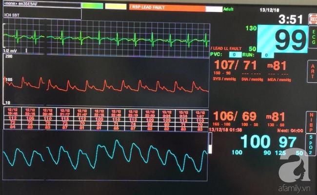 Thông số huyết động của bệnh nhân sau phẫu thuật.