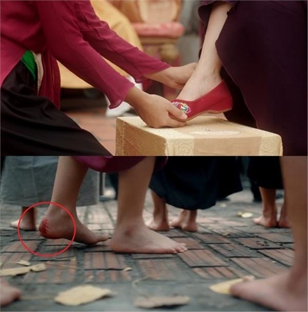 Chiếc hài của chân phải nhưng gót chân trái lại chảy máu.