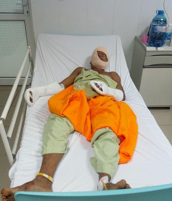 Nạn nhân Hòa đang được điều trị tại bệnh viện. Ảnh: báo CAND.