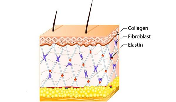 Nguyên nhân quan trọng khác khiến cho lỗ chân lông to ra là sự suy giảm collagen, elastin trên da