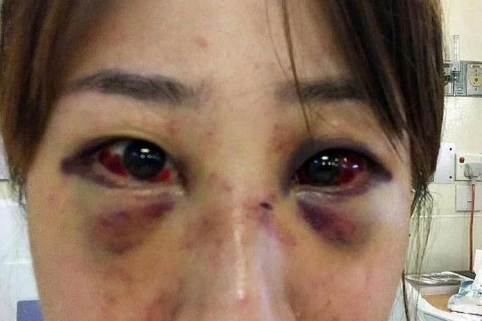 Nạn nhân bị đánh đến nỗi biến dạng gương mặt