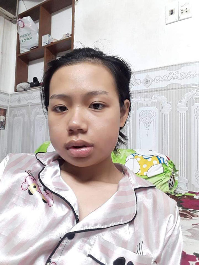 Là nạn nhân của  body-shaming nhiều năm trời, cô gái 'lột xác' sau khi phẫu thuật hàm 3